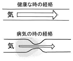青島大明気功と生命健康な経絡と病気の経絡の気の流れ
