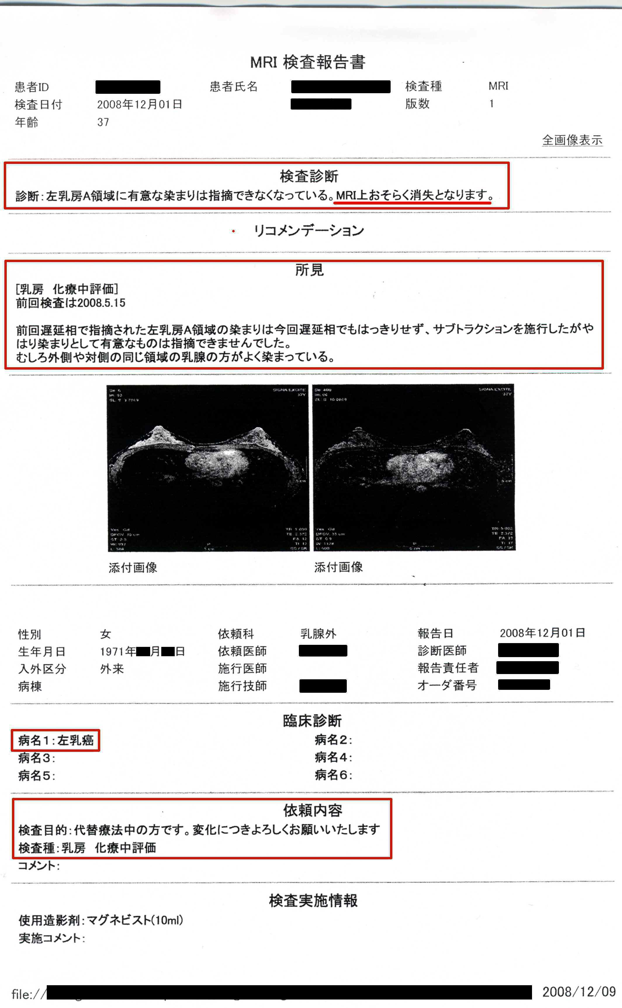 気功体験談:乳癌のMRI検査報告書(回復時)「MRI上おそらく消失」