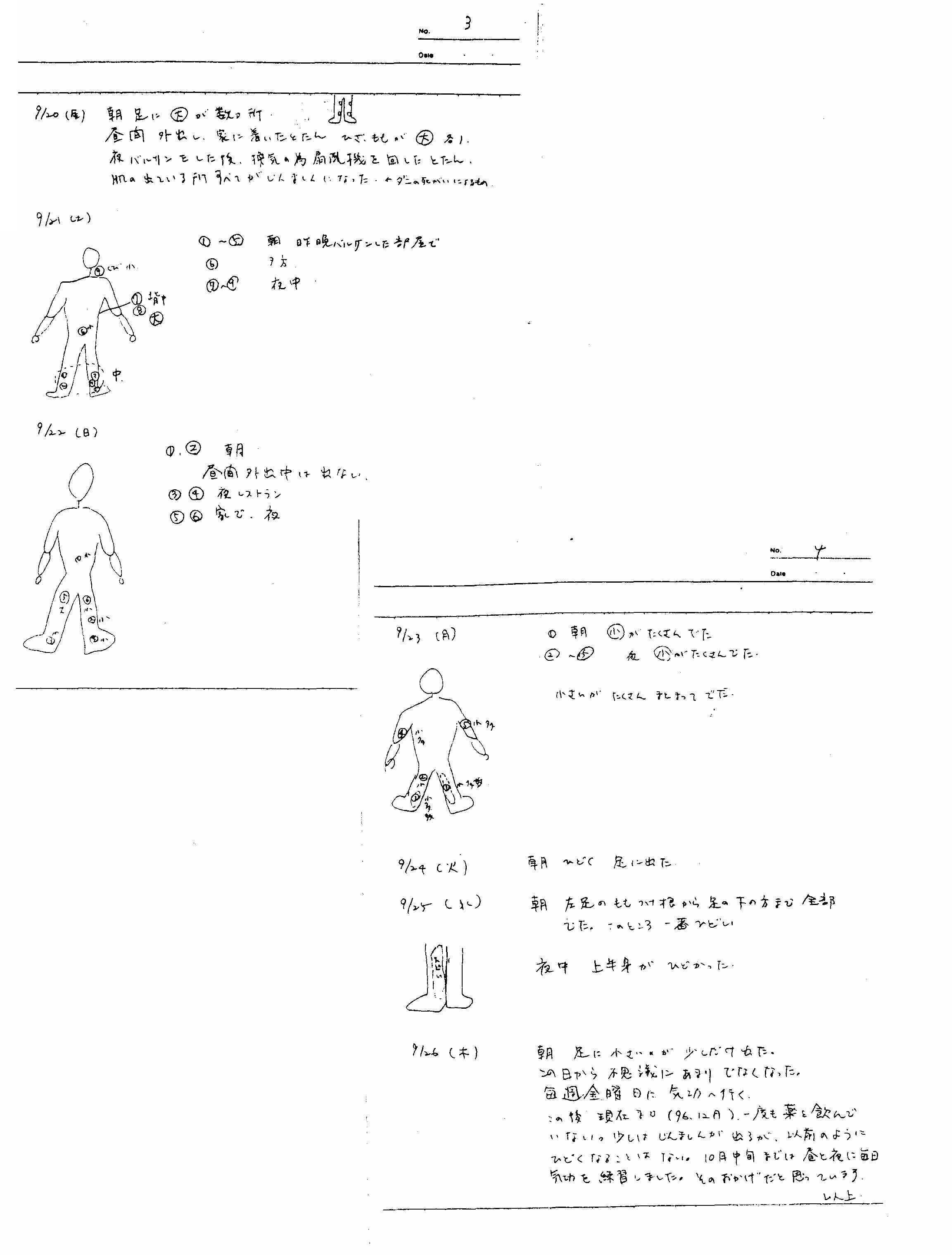 大明気功会 会報『人体科学研究』蕁麻疹(じんましん)改善の記録