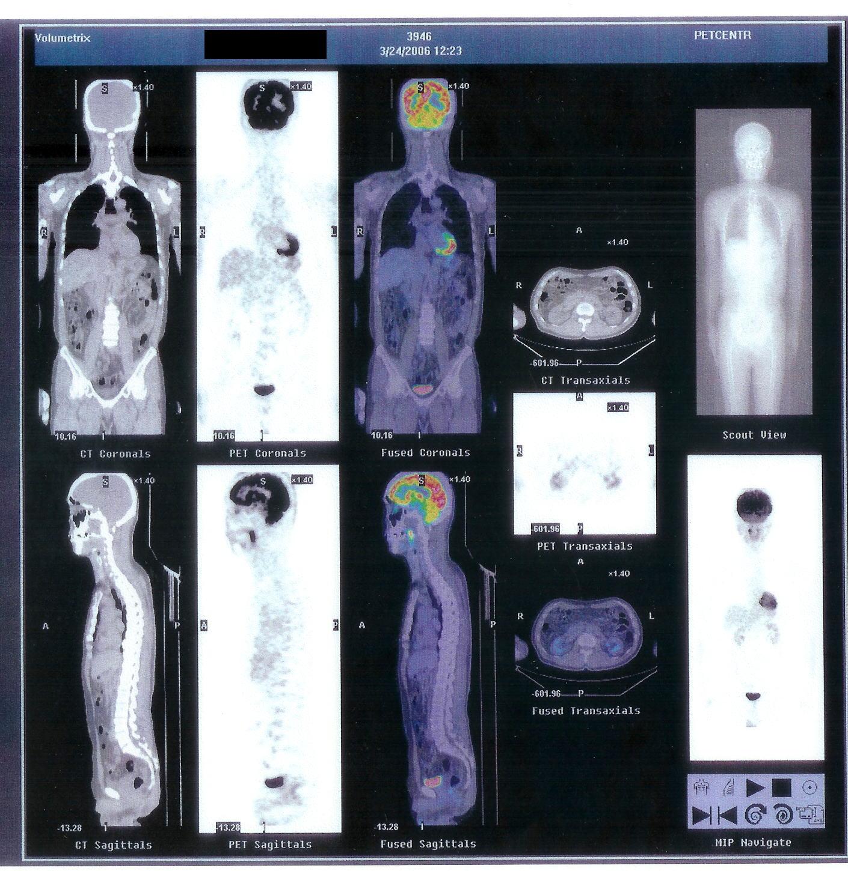 気功論文:喉頭ガンなど(他に悪性リンパ腫など)の疑い患者のPET検査結果