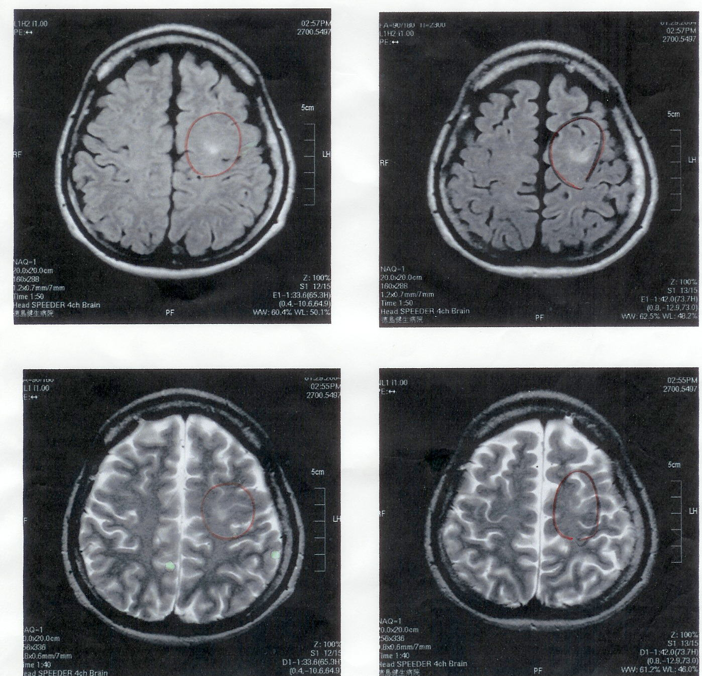 気功論文:脳腫瘍患者のMRI検査画像2