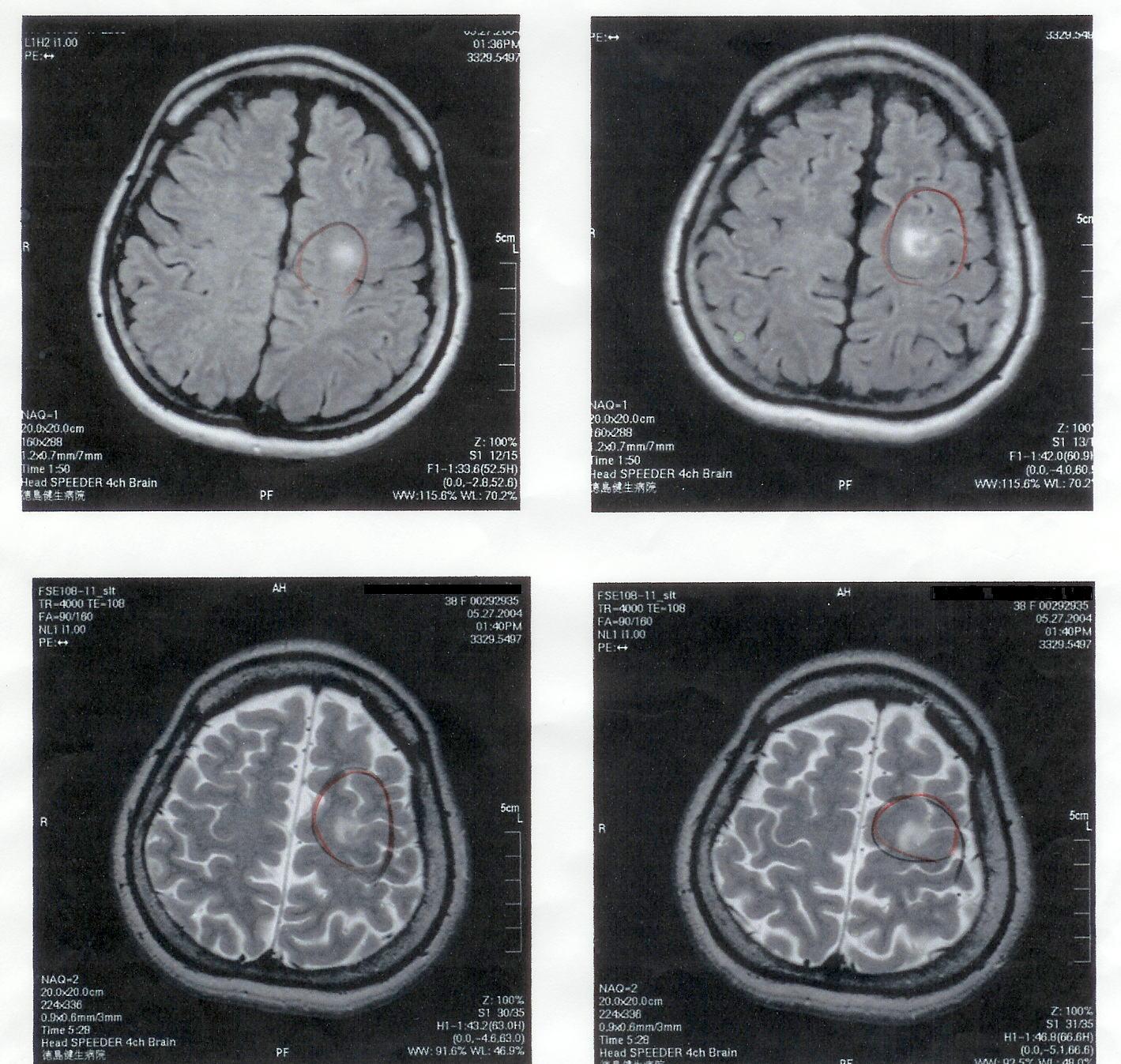 気功論文:脳腫瘍患者のMRI検査画像3