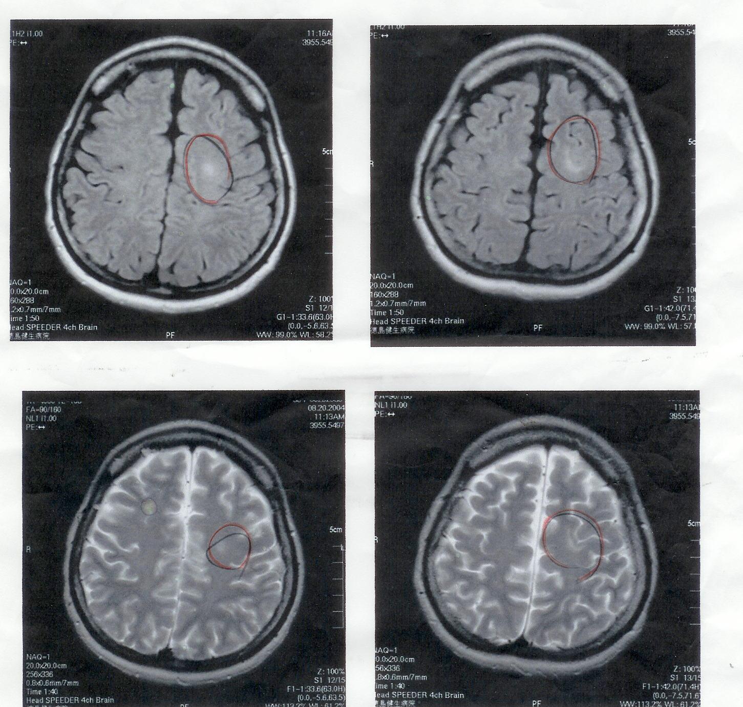 気功論文:脳腫瘍患者のMRI検査画像4